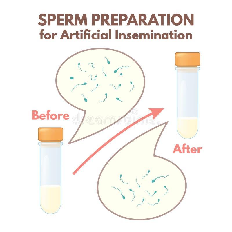 Préparation de sperme illustration libre de droits