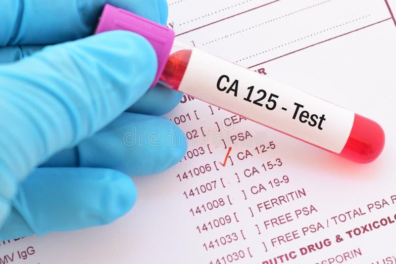 Próbka krwi dla CA125 bolaka markiera testa fotografia royalty free