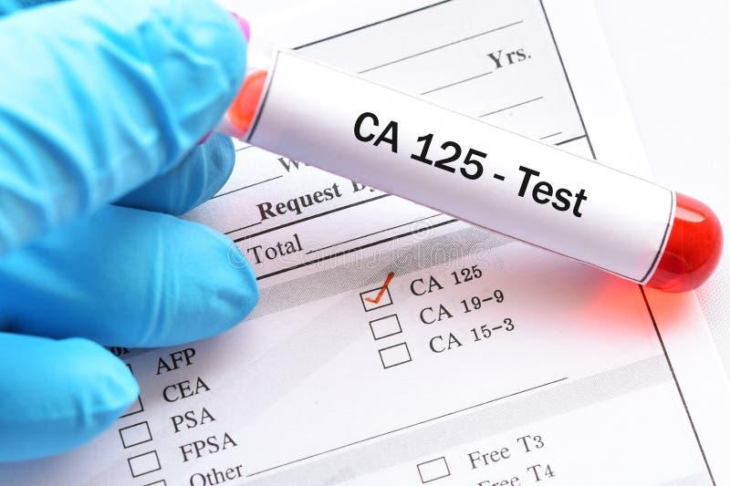 Próbka krwi dla CA125 testa zdjęcie stock