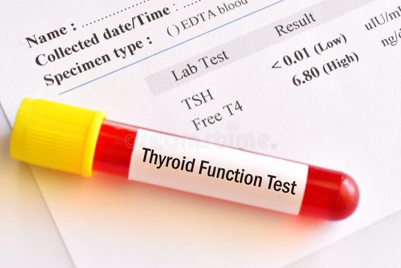 Próbki krwi tubka z anormalnym tarczycowego hormonu wynikiem testu zdjęcie royalty free