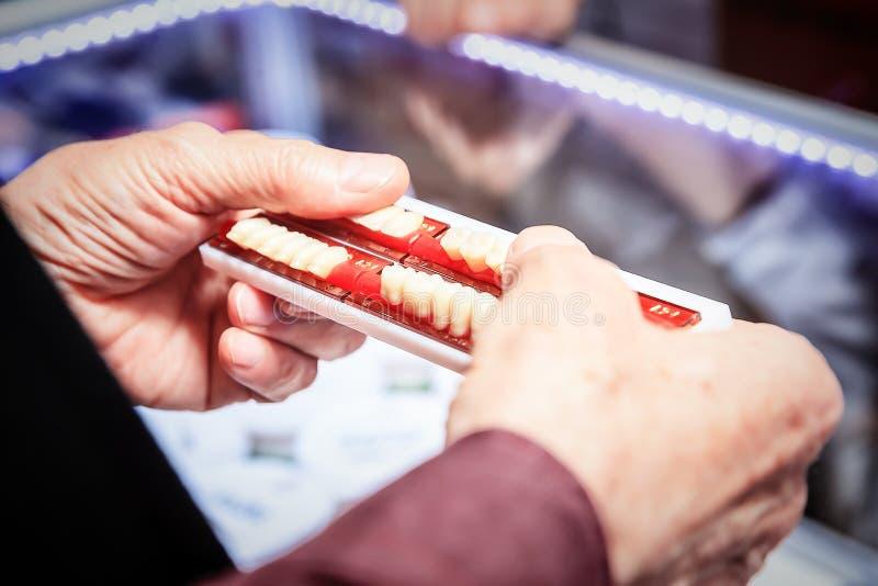 Próbki stomatologiczni wszczepy obrazy royalty free