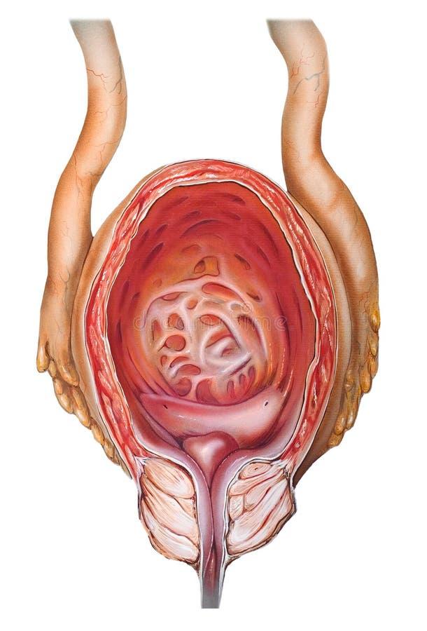 Próstata - hipertrofia prostática benigna fotografía de archivo