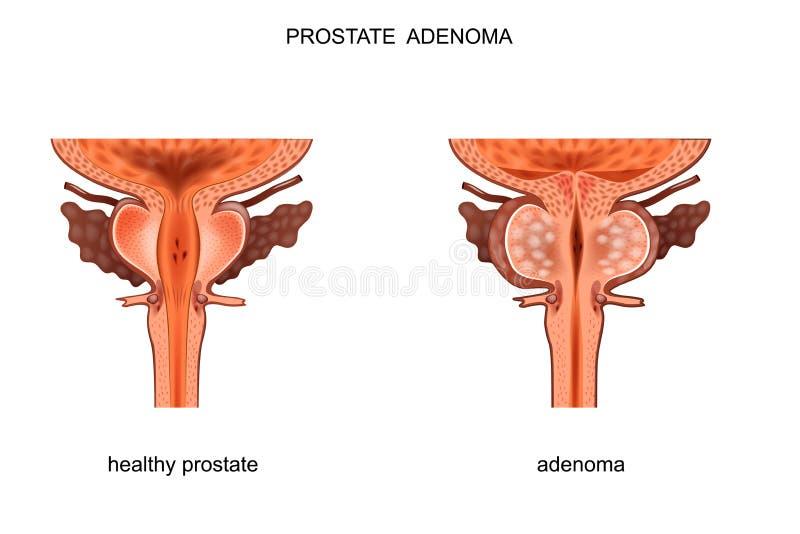 Próstata sana y BPH stock de ilustración