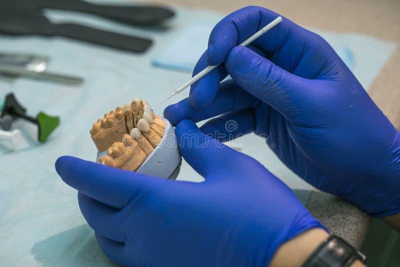 Prótese dental, dentaduras, trabalho das próteses Mãos das próteses ao trabalhar na dentadura, em um estudo e em uma tabela com imagem de stock royalty free