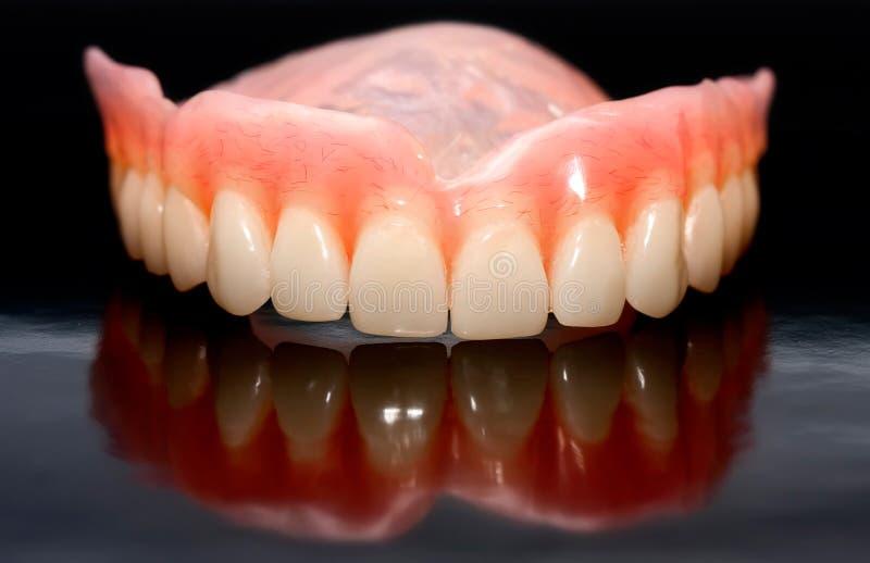 Prótese dental imagens de stock royalty free