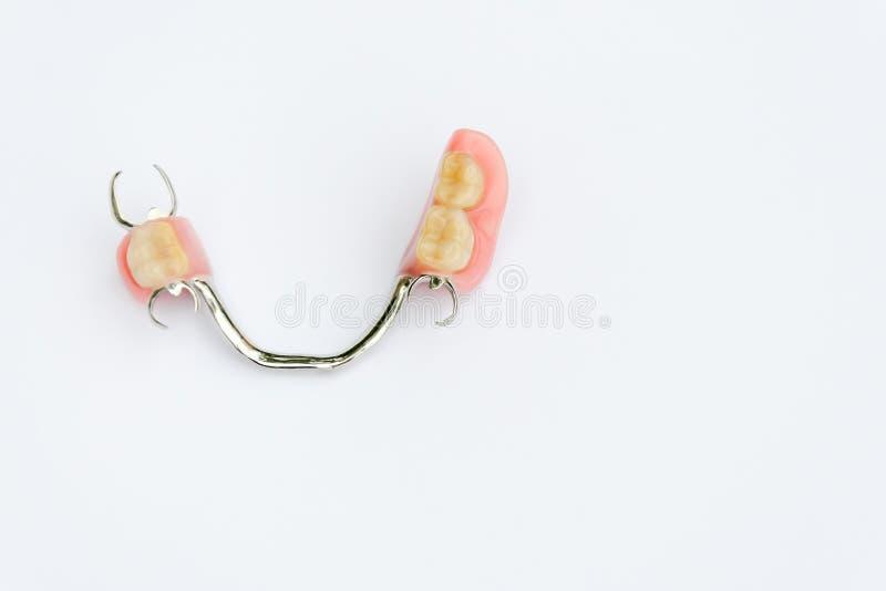 Prótese do arco na maxila mais baixa sem coroas foto de stock royalty free