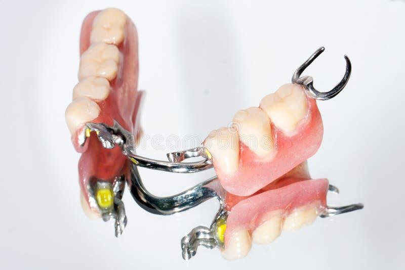 Prótese parcial dental imagens de stock royalty free