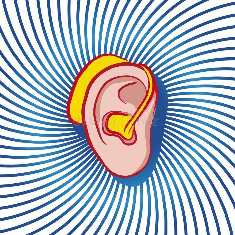 Prótesis de oído libre illustration