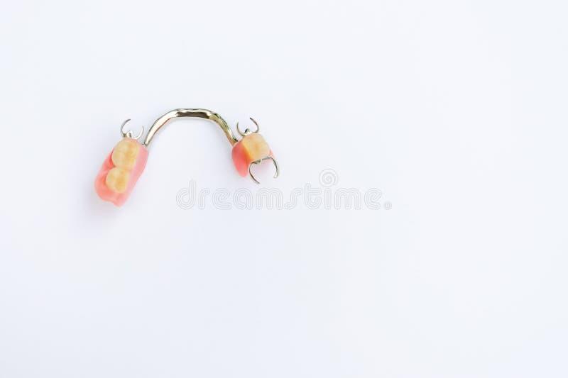 Prótesis del corchete en el maxilar inferior imagen de archivo libre de regalías