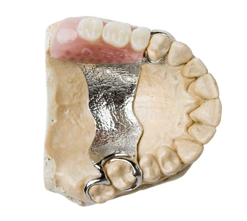 Prótesis dental fotos de archivo