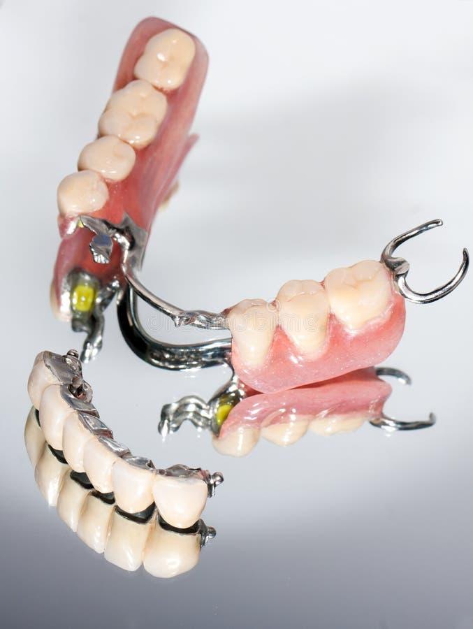 Prótesis parcial dental foto de archivo libre de regalías