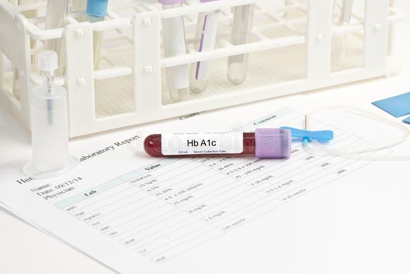 Prövkopia för A1c-labbblod royaltyfri foto
