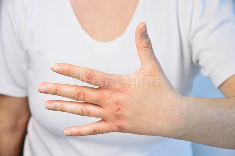 Prüfung der Hand stockfotos