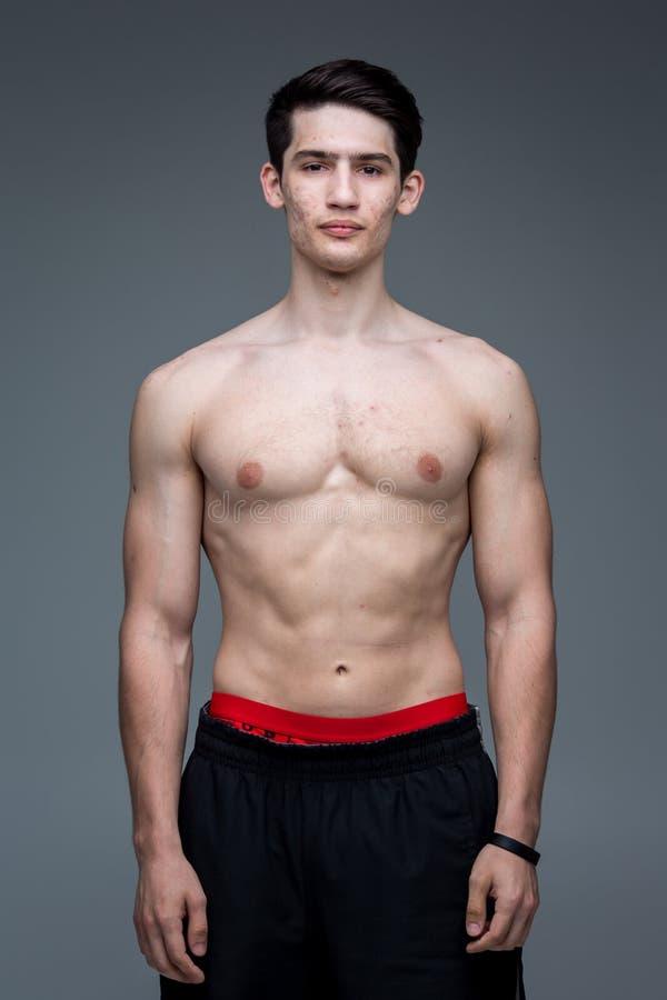 Pracowniany portret młodej brunetki caucasian mężczyzna na szary tła pozować Dojrzałość płciowa temat, problemowa skóra, nastolet obraz stock