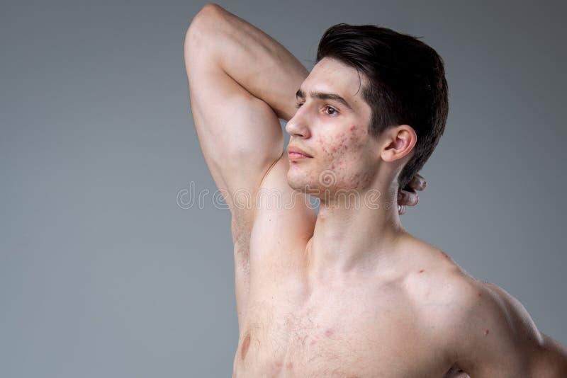 Pracowniany portret młodej brunetki caucasian mężczyzna na szary tła pozować Dojrzałość płciowa temat, problemowa skóra, nastolet obrazy stock