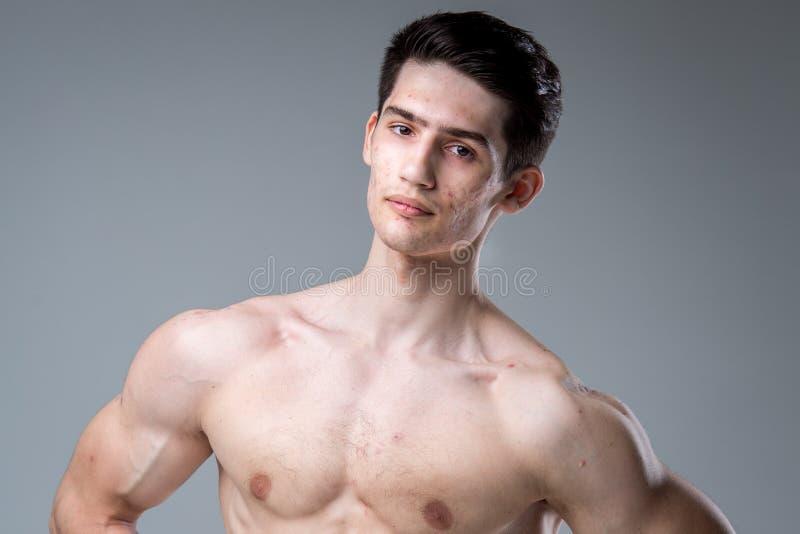 Pracowniany portret młodej brunetki caucasian mężczyzna na szary tła pozować Dojrzałość płciowa temat, problemowa skóra, nastolet obraz royalty free
