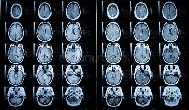Pre/cerebro MRI del contraste del poste fotografía de archivo