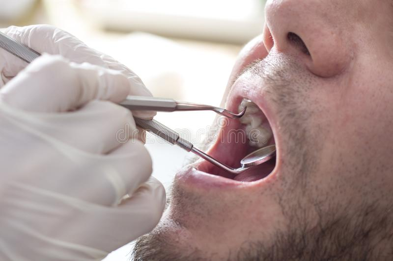 Pre-medical review of the condition of teeth in a middle-aged man. Wide open mouth. Doctor`s excavator and dental mirror in the ha royalty free stock images