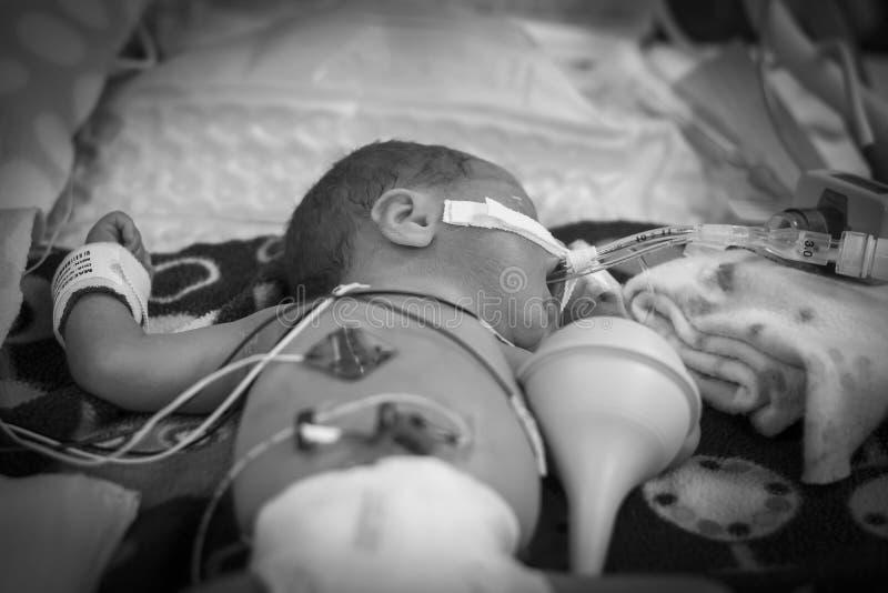 Preemien behandla som ett barn flickan i kuvösen arkivfoton