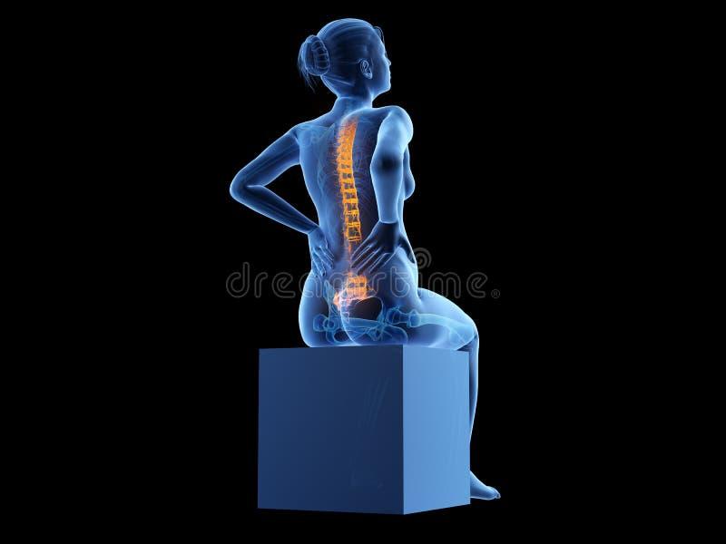 A pregnant woman having backache royalty free illustration