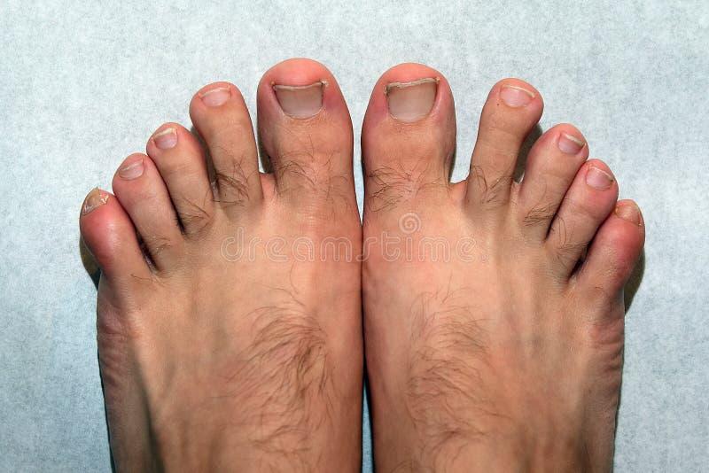 Pregos, pés e dedos do pé feios fotografia de stock royalty free