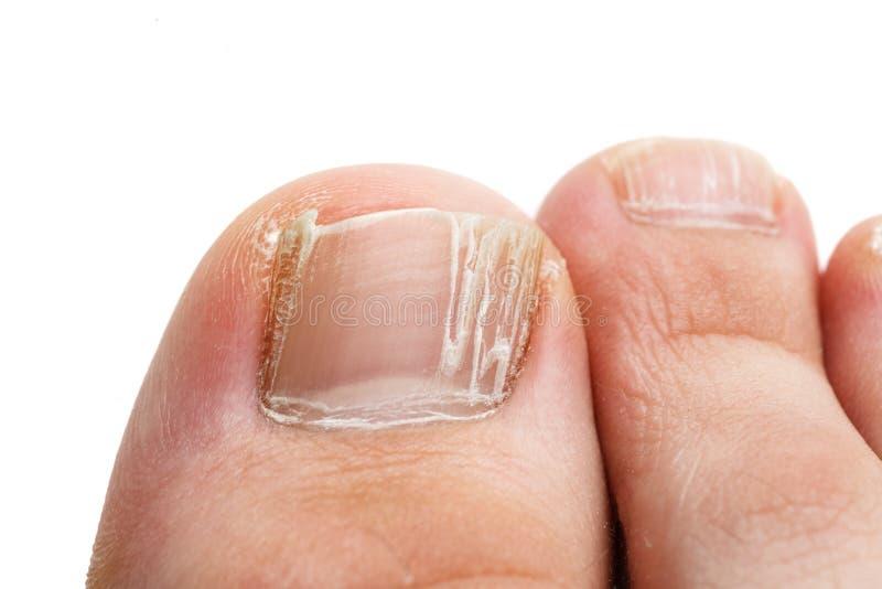 Pregos rachados dos dedos do pé isolados em branco, close up disparado fotos de stock royalty free