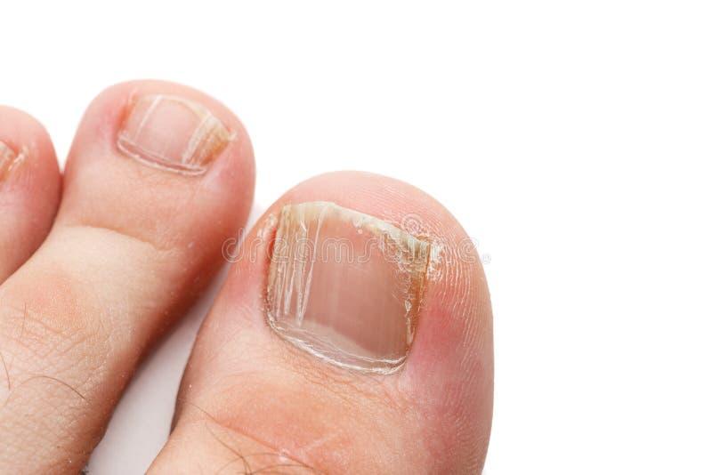 Pregos rachados dos dedos do pé isolados em branco, close up disparado fotos de stock