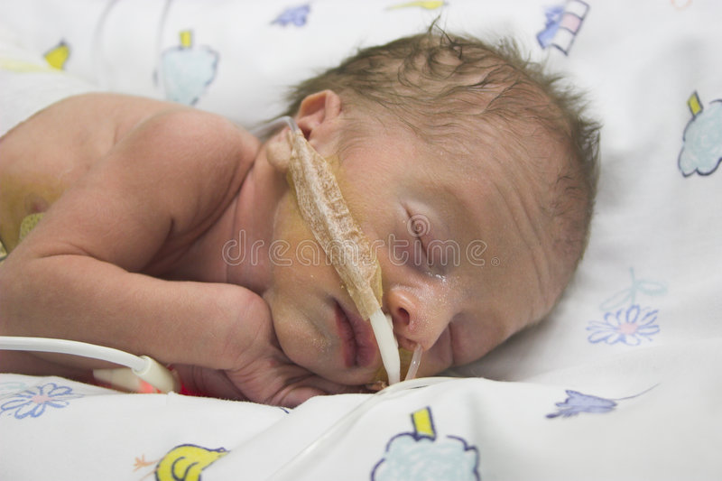 Premature baby royalty free stock image