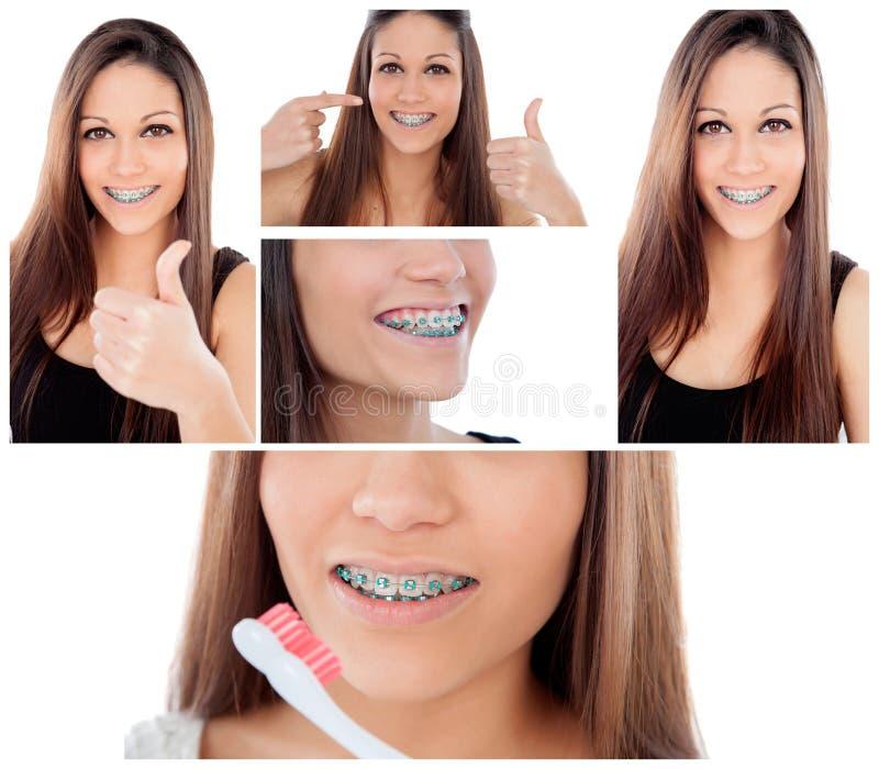 Preoccupi i vostri denti Ragazza con i sostegni fotografie stock