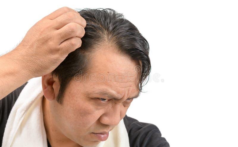 Preocupação asiática do homem sobre sua queda de cabelo ou calvície isolada foto de stock royalty free