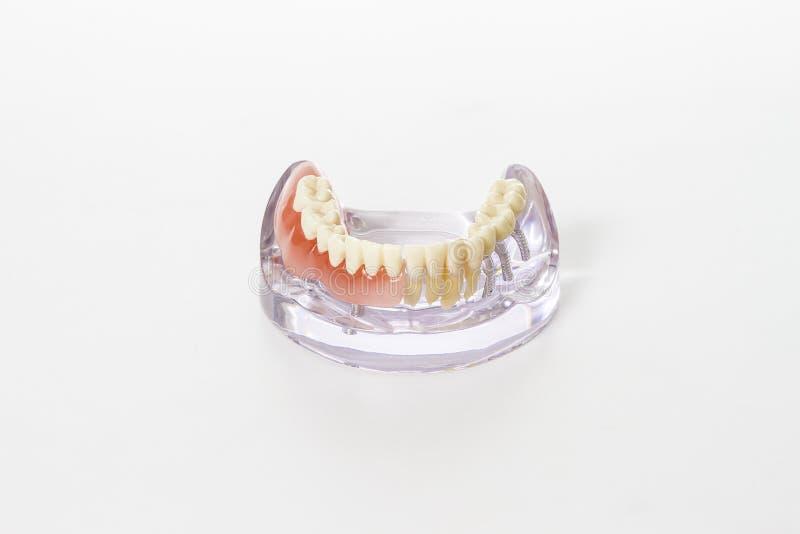 Preparación de la prótesis dental foto de archivo