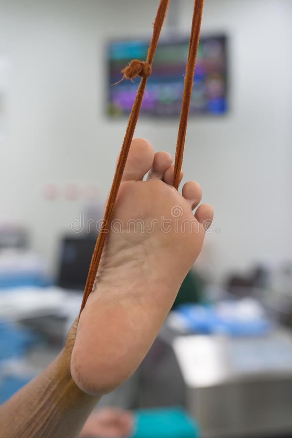 Prepare foot before surgery. Prepare the foot before surgery royalty free stock images
