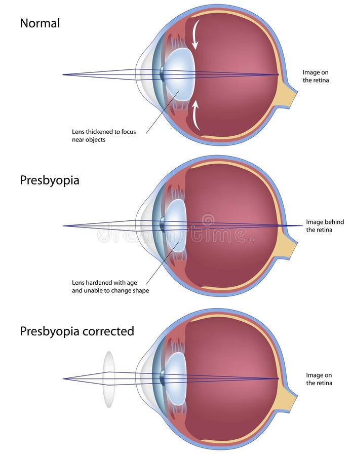 Presbyopia. An age related farsightedness, common eye condition, eps8 stock illustration
