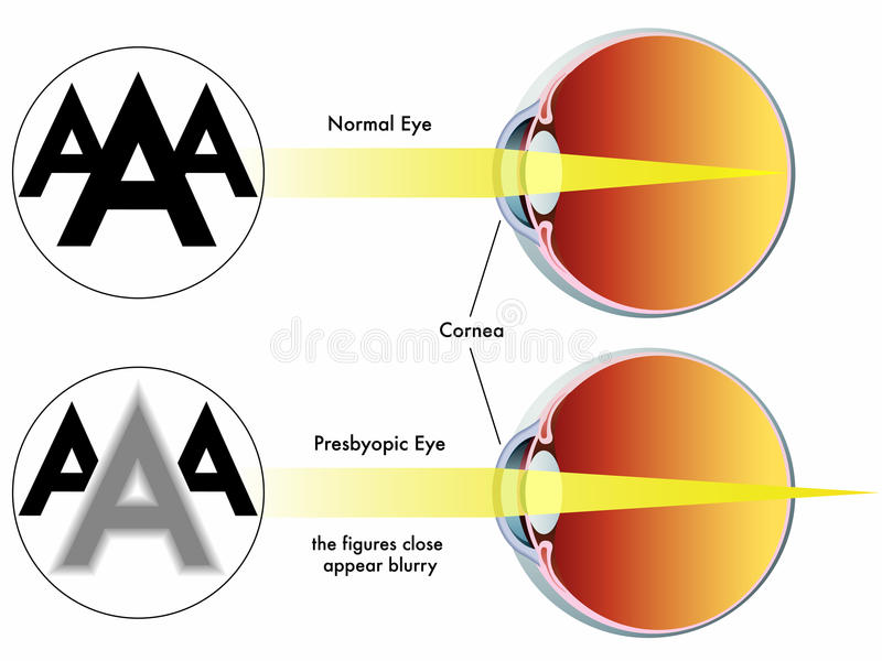 Presbyopia. Medical illustration of the symptoms of presbyopia vector illustration