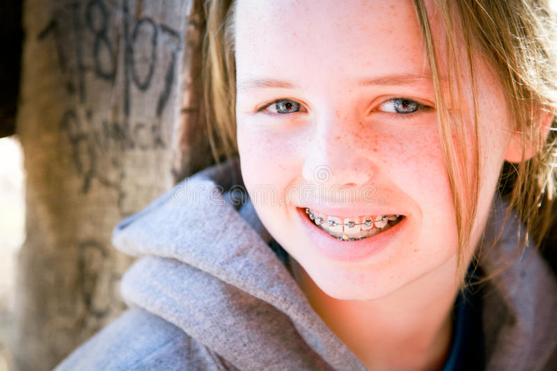 Download Pretty Girl with Braces stock photo. Image of fresh, hoodie - 22266796