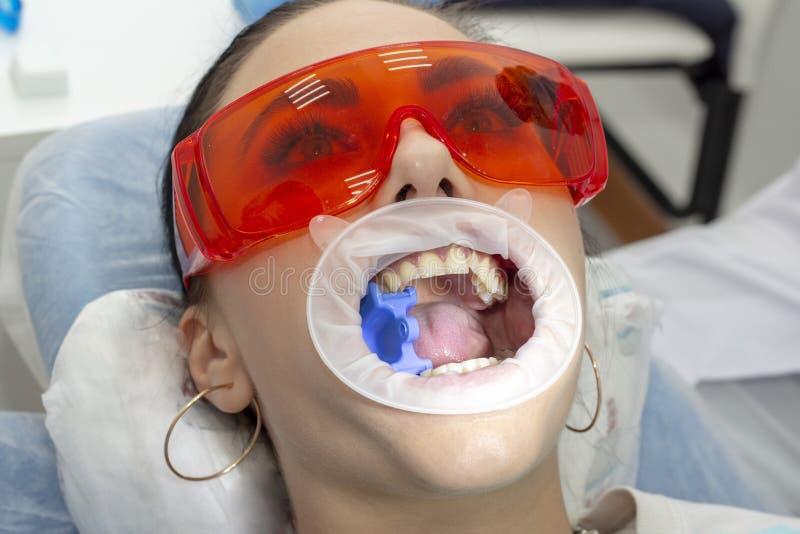 Preventief onderzoek bij tandartsmeisje bij de ontvangst bij het tandartsmeisje die op de stoel bij de tandarts met open mond lig stock afbeeldingen