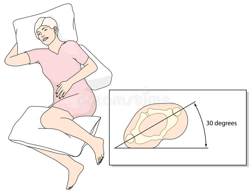 Prevention of bed sores. Position in bed to prevent the development of pressure ulcers. Created in Adobe Illustrator. EPS 10 vector illustration