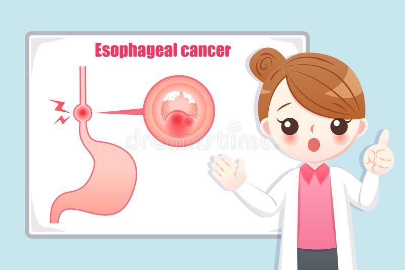 Prevention esophageal cancer royalty free illustration