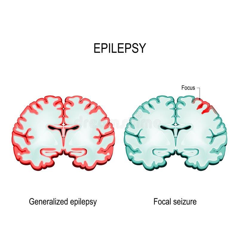 primär generaliserad epilepsi och fokal- beslag stock illustrationer