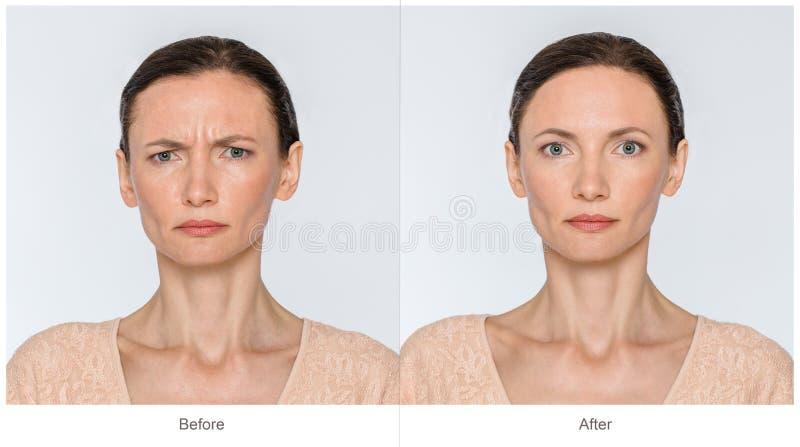 Prima e dopo il concetto di anti-età fotografie stock
