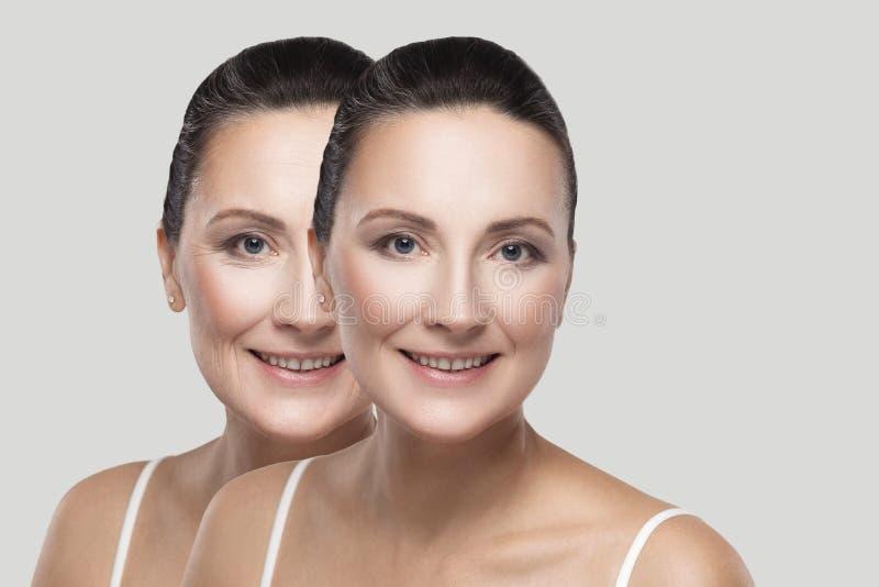Prima e dopo la pelle di bellezza corruga la procedura del trattamento immagine stock libera da diritti