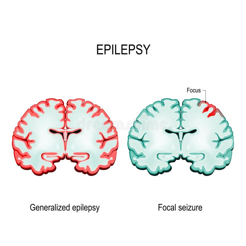 primaire algemene epilepsie en brandpuntsbeslagleggingen stock illustratie
