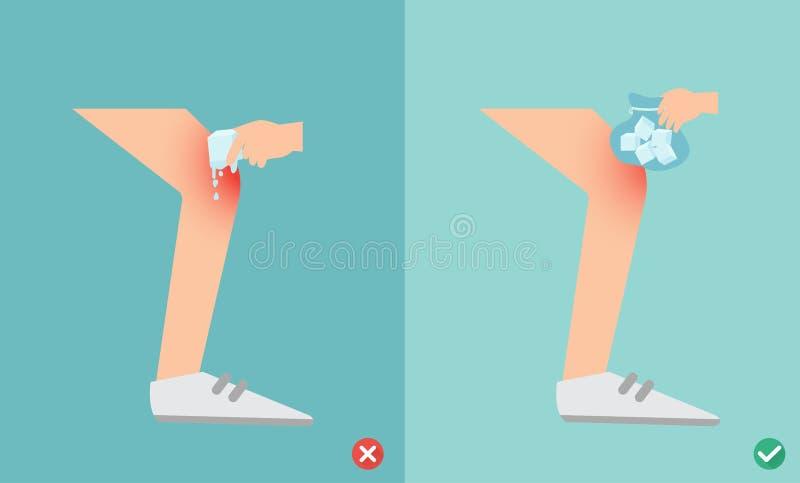 Primeiros socorros das maneiras erradas e direitas de usar bolsas de gelo para ferimento ilustração royalty free
