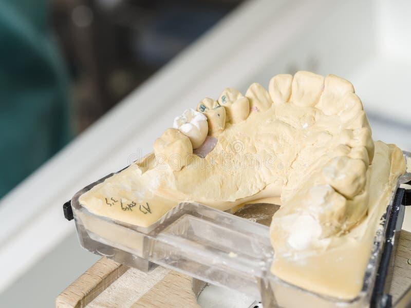 Primer de la aplicación de cerámica a los dientes, implante del técnico dental fotografía de archivo