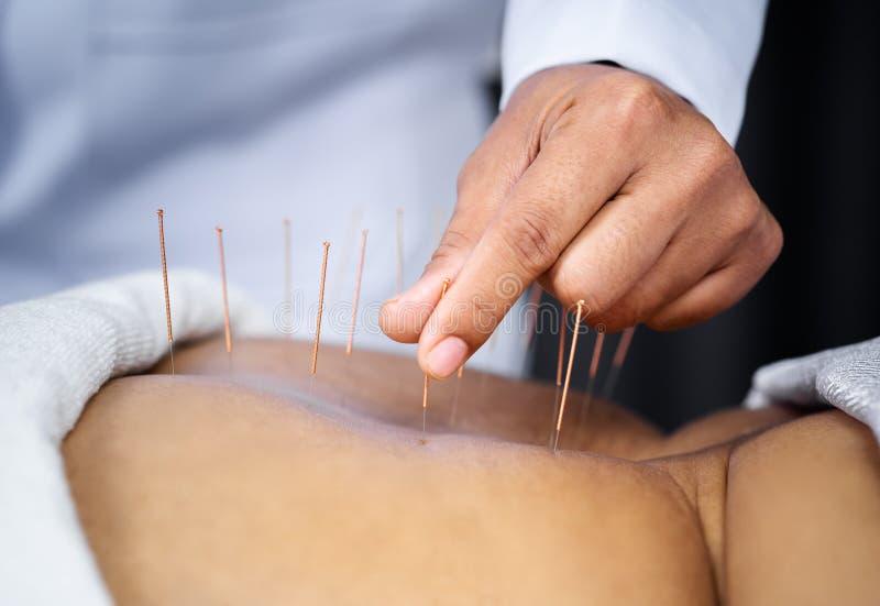 Primer de la parte posterior femenina mayor con las agujas de acero durante el procedimiento de la terapia de la acupuntura fotos de archivo