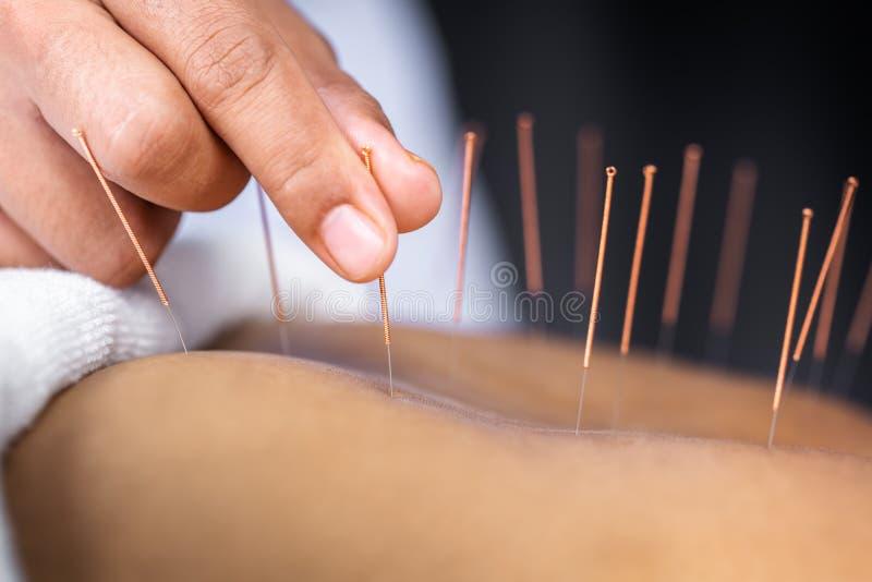 Primer de la parte posterior femenina mayor con las agujas de acero durante el procedimiento de la terapia de la acupuntura foto de archivo libre de regalías