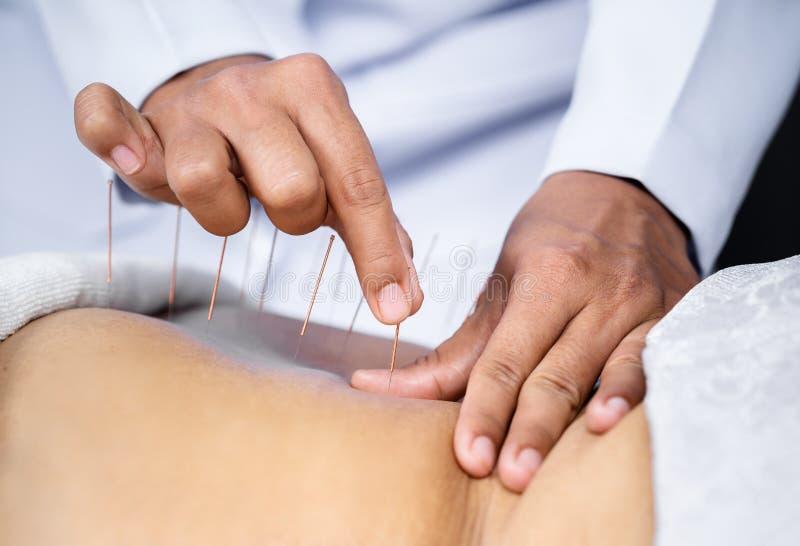 Primer de la parte posterior femenina mayor con las agujas de acero durante el procedimiento de la terapia de la acupuntura fotografía de archivo