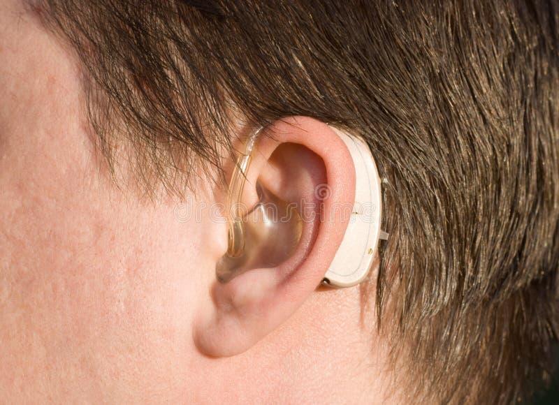 Primer de un oído del hombre con una prótesis de oído foto de archivo