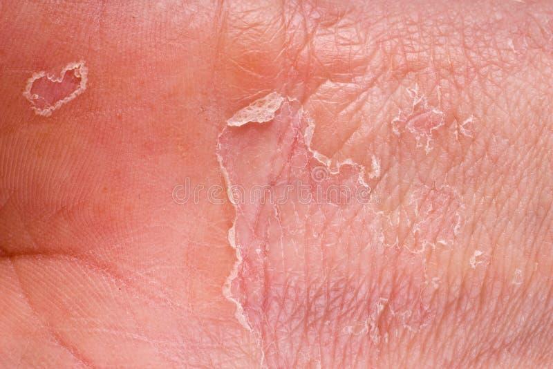 Primer del eczema fotos de archivo