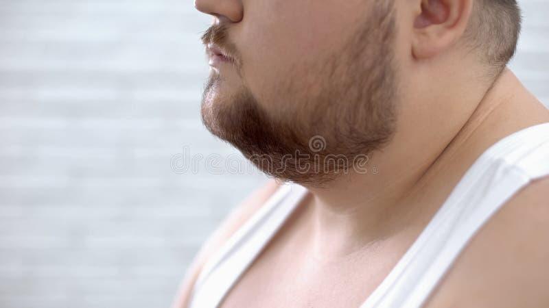Primer del hombre barbudo gordo en la camisa blanca, problemas de la obesidad, falta de autosuficiencia fotos de archivo libres de regalías